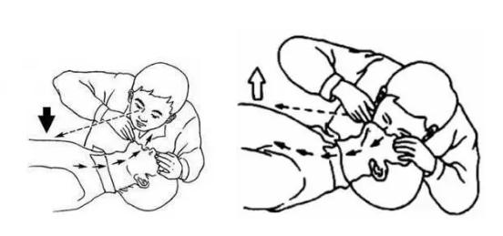 人工呼吸具体操作方法是